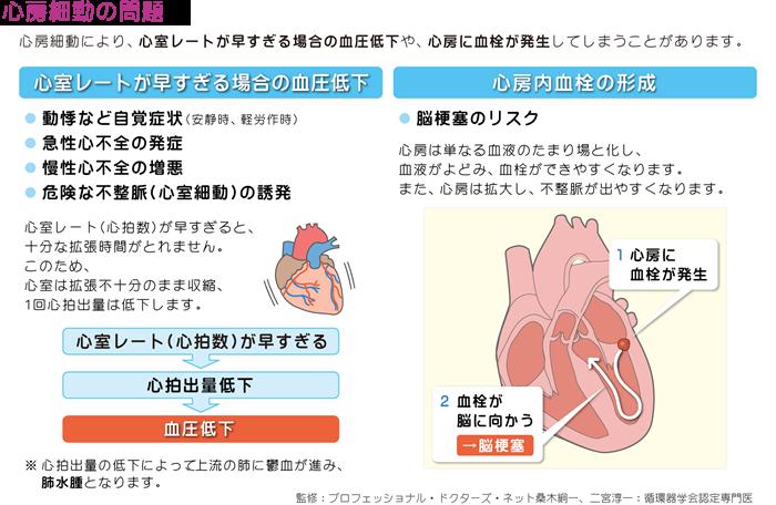 心房細動の問題